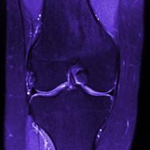 knee_1