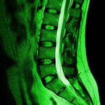 spine_1